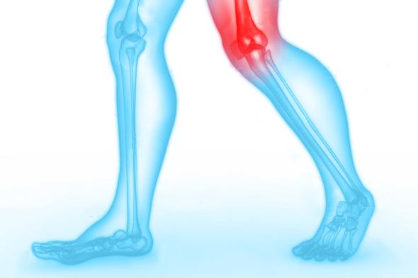 bovenbeen-knie-klacht-blessure-podotherapie