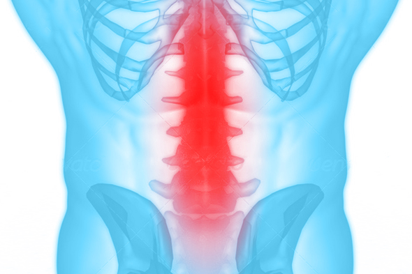 rugwervel-klacht-blessure-podotherapie