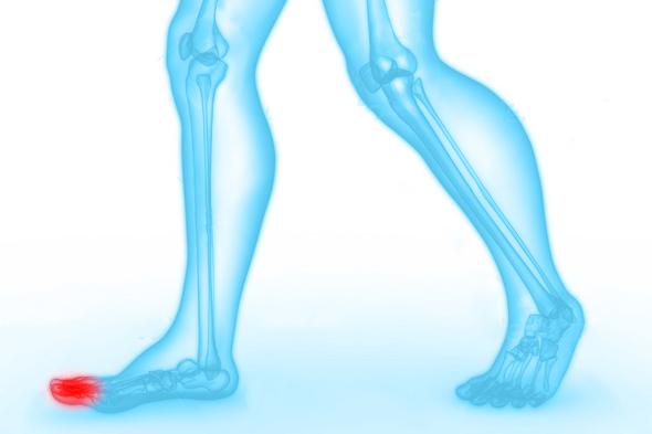 tenen-klacht-blessure-podotherapie