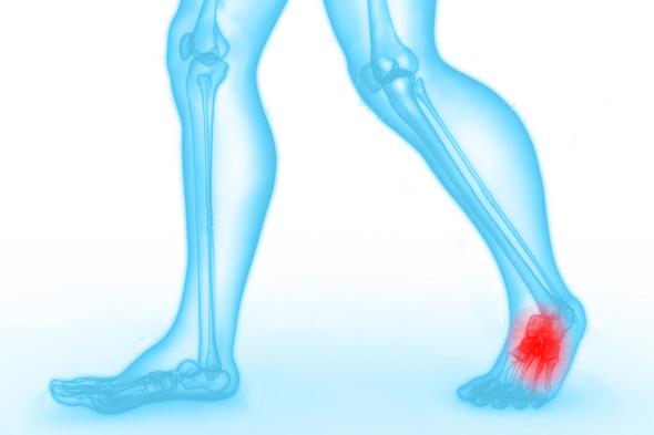 voet-klacht-blessure-podotherapie